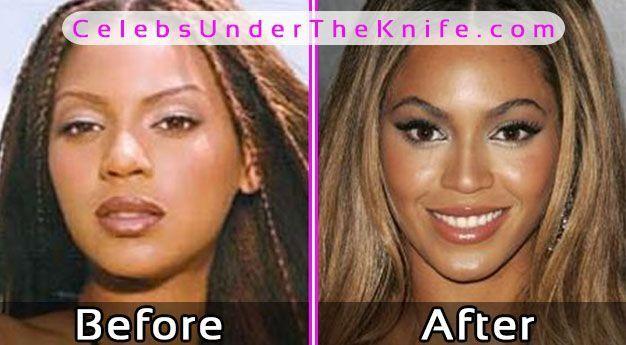 Beyonce Plastic Surgery Photos Before After #celebsundertheknife #celebs #celebrity #plasticsurgery #celebritysurgery