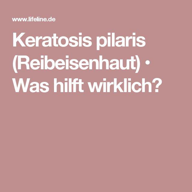 Keratosis pilaris (Reibeisenhaut)  • Was hilft wirklich?