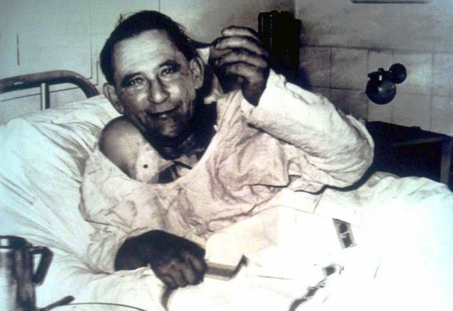 Recipient of the world's first human heart transplant, Louis Washkansky, in Groote Schuur Hospital, Cape Town, three days after the surgery. [6 December 1967]