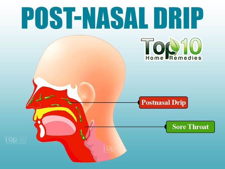 How To Treat Post Nasal Drip Naturally
