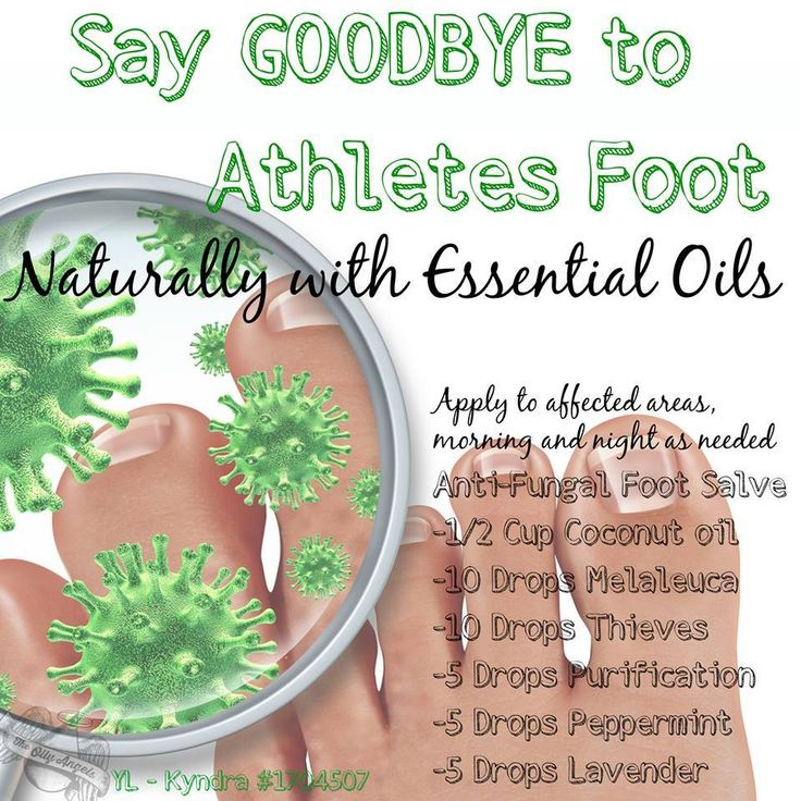 Anti-Fungal Foot Salve Works for athlete's foot as well as toe issues