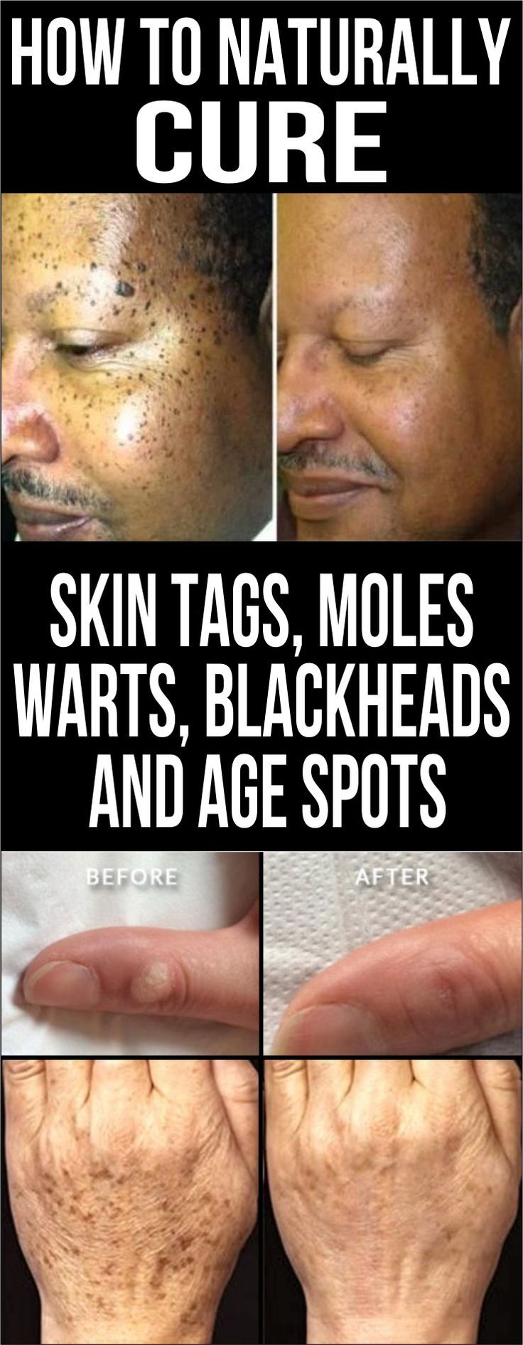 It is important to pay attention to your skin and look for