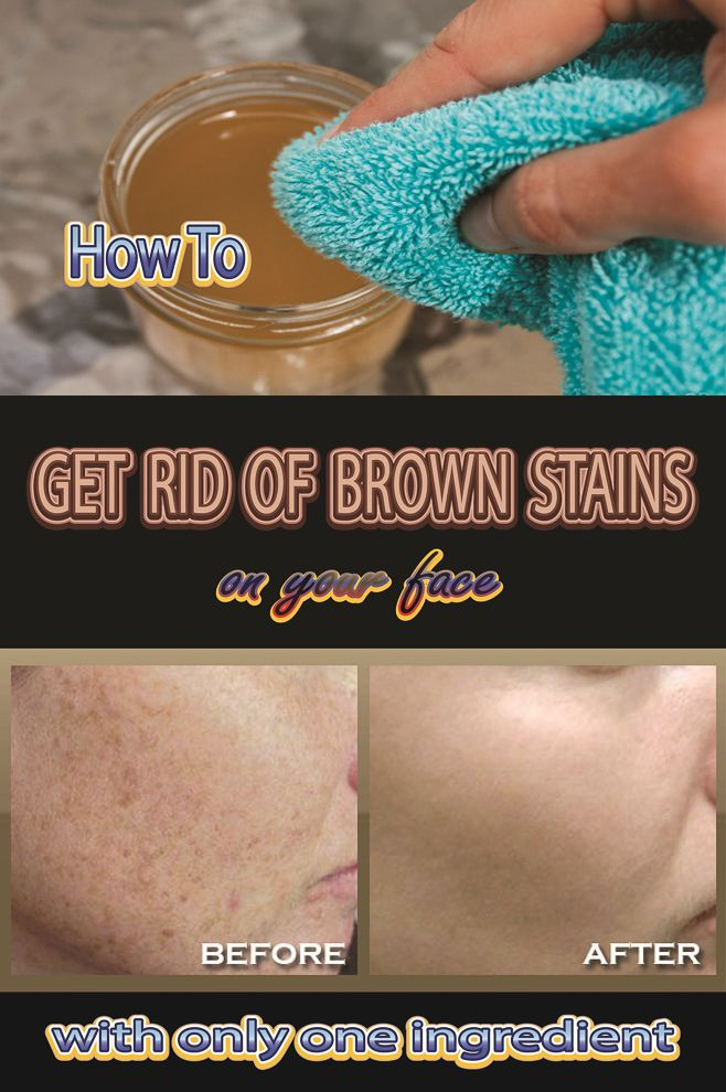 Natural Way To Get Rid Of Brown Stains On Your Face