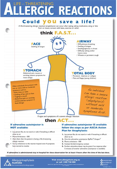 A3 Poster Think Fast - Allergy & Anaphylaxis Australia