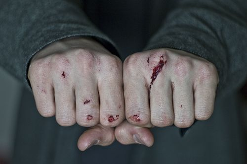 Liz's hands are bloody from previous fights. These heal during the play as she becomes more compassionate etc.
