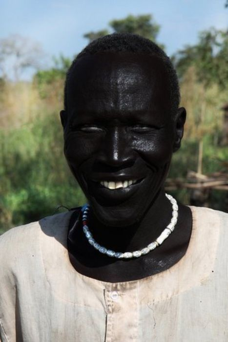 This man is believed to be the world's blackest man.      .......          Melanism is an undue development of dark-colored pigment in the skin or its appendages and is the opposite of albinism.