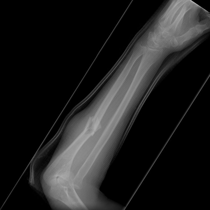 Monteggia fracture-dislocations comprise of a fracture of the ulna shaft and dislocation of the radial head. The ulna fracture is usually very obvious whereas the radial head dislocation can be overlooked, with potentially serious functional and medico-legal ramifications.   http://radiopaedia.org/articles/monteggia-fracture-dislocation