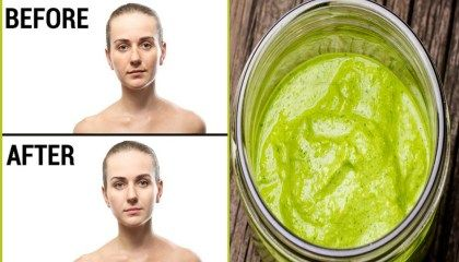 Use this green paste to remove acne scars effectively