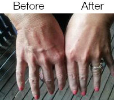 #instantlyagelss #amazing #before #after #pic #hand #look #years #younger #wow