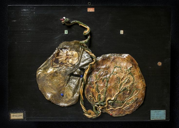 "The mother of these twins had hydramnios (amniotic fluid disorder), a condition that occurs in about 1–4% of pregnancies, more frequently with twins or multiple births. The amniotic sac, filled with fluid, surrounds the fetus, forming a protective cushion. The fetus moves around in the amniotic fluid and even ""breathes"" the liquid, which helps its lungs develop. If there is too much or too little fluid, however, the fetus or fetuses may not grow normally.19th c"