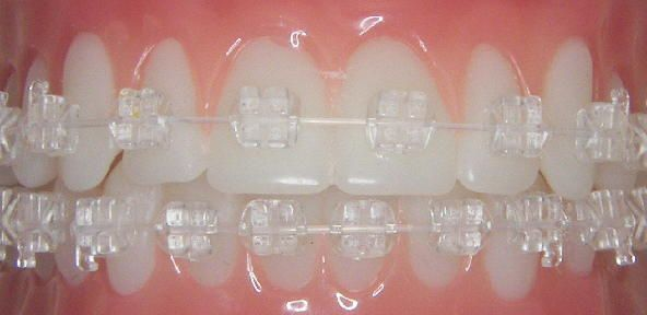 SimpliClear braces. The wire is clear unlike typical ceramic braces that use a metal wire.  www.cbortho.com