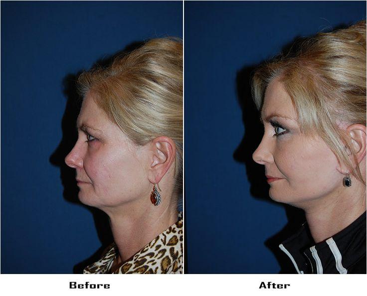 Procedures Performed: Endoscopic Brow Lift: 3/4 Brow lift Deep Plane Minituck CO2 Laser Resurfacing: eyes and mouth Dr. Freeman's Makeovers