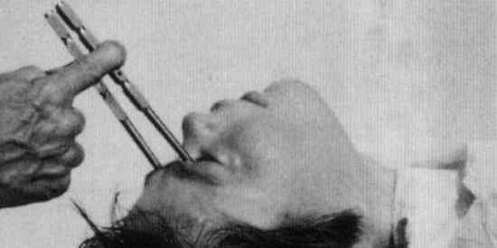 Você já deve ter ouvido falar de lobotomias, mas você sabe realmente do que se trata? Ela é uma terapia extremamente invasiva e radical, muito praticada na primeira metade do século XX, para tratar as pessoas que tinham problemas mentais. A lobotomia simplesmente cortava as conexões do córtex pré-frontal do cérebro com outras partes do órgão. Os médicos furavam os crânios dos pacientes e destruíam os tecidos que cercavam os lobos frontais.
