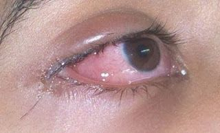 Eyes infection treatment