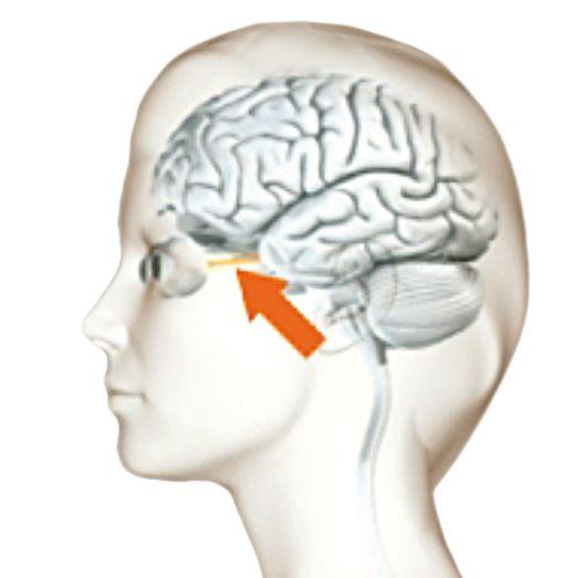 """Der Sehnerv ist oft als erstes bei Multipler Sklerose betroffen. Folgen sind: Doppelbilder, Flecke, Unscharfsehen. Man spricht von Optikusneuritis. Deshalb wird die Verdachtsdiagnose nicht selten auch von Augenärzten gestellt und dann zum Neurologen überwiesen. - Animation aus dem AMSEL-Service """"MS verstehen""""."""