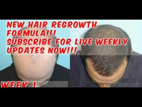 NEW HAIR LOSS/BALDNESS TREATMENT/BIOGROW by OSMA Laboratories/Week 1 -  How To Stop Hair Loss And Regrow It The Natural Way! CLICK HERE! #hair #hairloss #hairlosswomen #hairtreatment Hair loss, anti-dandruff,hair loss prevention,baldness cure,hair loss treatment. My weekly documented treatment. Please subscribe for updates. GET A 0.5MM DERMAROLLER HERE GET HAIR... - #HairLoss