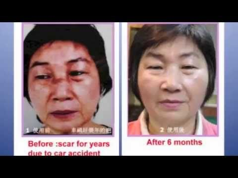 Luminesce Skincare with Instantly Ageless Before and Afters By Jeunesse ...