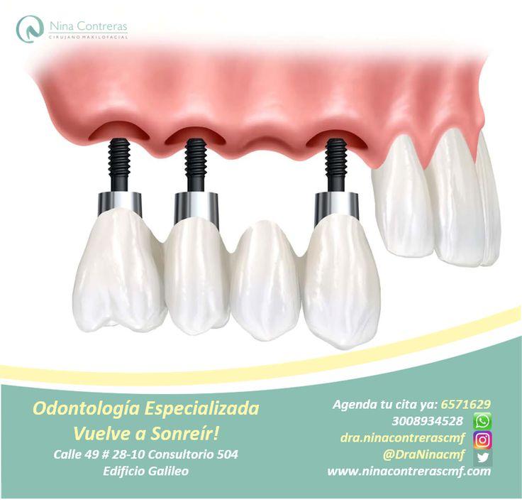 Vuelve a Sonreír! Especialistas en Implantes y Prótesis Dentales Atrévete a generar cambios y déjanos conocer tu caso: 6571629 - WhatsApp: 3008934528 http://ninacontrerascmf.com/