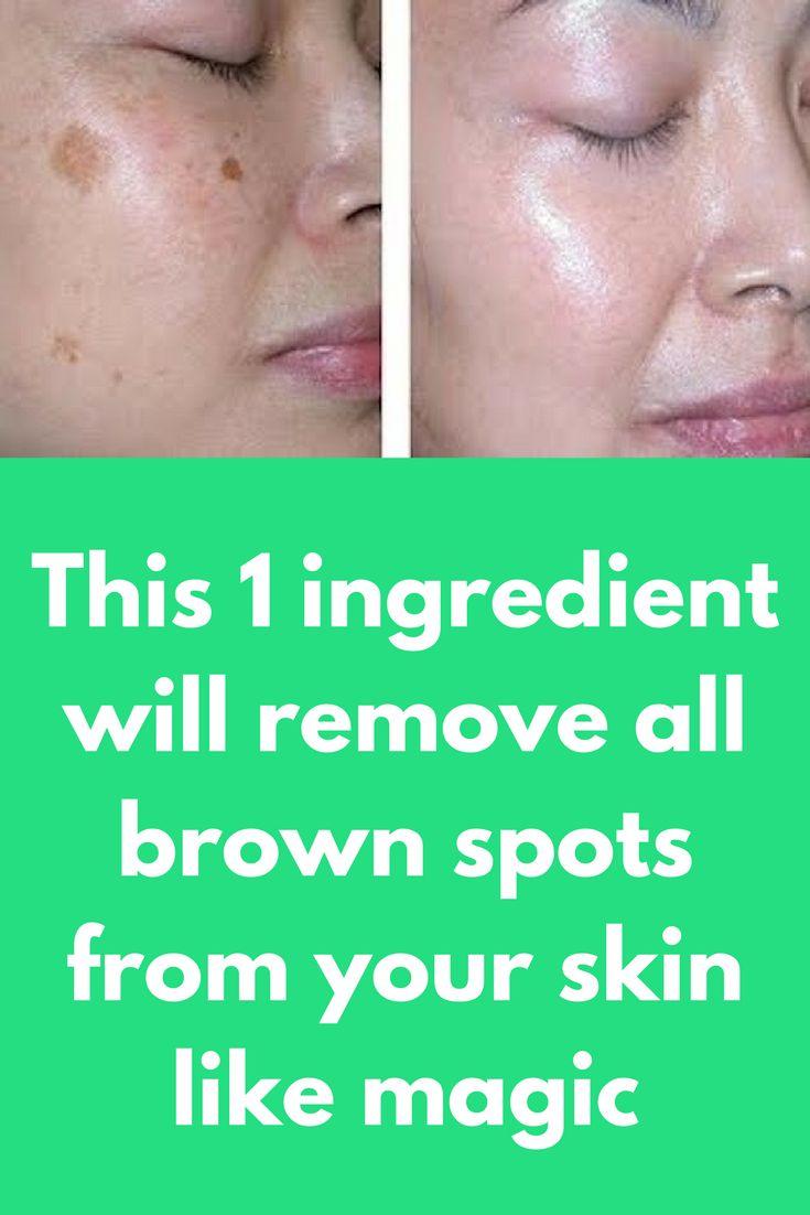 Facial brown spots removal atlanta, wife swinger sex