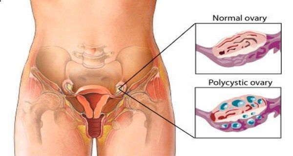 CLEAN THE OVARY CYSTS WITH THE BEST RECIPES!..OVARY CYST CAUSE BLOATING, LOWER ABDOMINAL PAIN, OR LOWER BACK PAIN