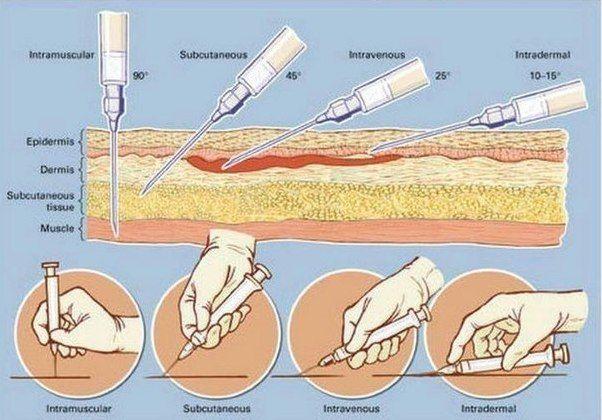 Внутримышечная инъекция — самый распространенный и наиболее простой способ введения в организм лекарственных препаратов. Такие уколы рекомендуется делать в наиболее крупные мышцы в местах, отдаленных от основных кровеносных сосудов и нервов.    Как правило, для инъекции в ягодицу использу