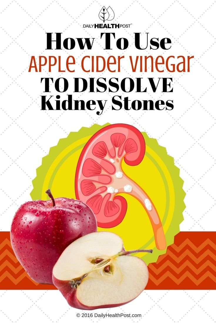 Apple Cider Vinegar Renal Diet | All Articles about Ketogenic Diet