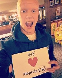 Thomas is raising money to help Alopecia UK