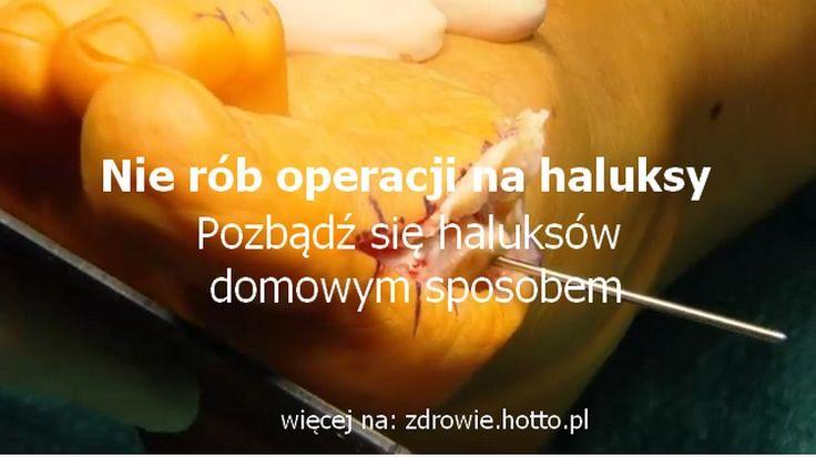 NATURALNE SKUTECZNE SPOSOBY NA HALUKSY BEZ OPERACJI oraz proste ćwiczenia – zdrowie.hotto.pl, domowe sposoby na zdrowie