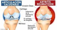 La artritis reumatoide es una enfermedad autoinmune donde el cuerpo se destruye a sí mismo, y menos del 1 % de las personas tienen remisión espontánea. http://articulos.mercola.com/sitios/articulos/archivo/2015/08/09/remision-de-la-artritis-reumatoide.aspx