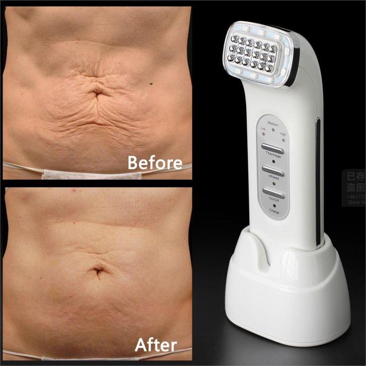 Real Verwijderen Rimpels Dot Matrix Facial Radiofrequentie Lifting Gezicht Lift Body Huidverzorging Schoonheid Apparaat 110-240 V