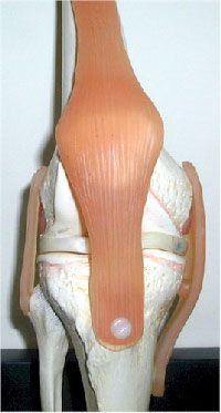 What to do if you dislocate your kneecap