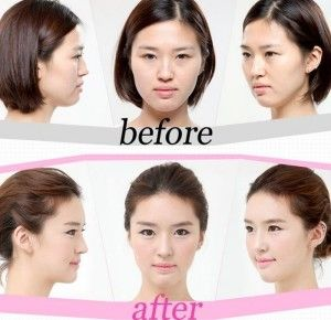 A Korean plastic surgery involves the following corrections done to the face: Double eyelid surgery to give better shape and size to the eyes. Rhinoplasty to define nose better and make them look flawless, pointed and relatively small. Jaw bone correction surgery to shave off the square or angular shape of the jaws, and make them look rounded and small. - See more at: http://fashionsunrise.com/korean-plastic-surgery-brings-ultimate-perfection-to-faces/#sthash.evEUxdob.dpuf
