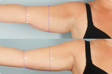 Before & After Smart Lipo.  A great way to target smaller pockets of fat than tr…