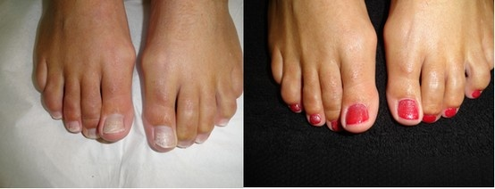 Red glitter shellac toes - before and after