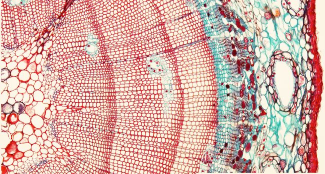Crecimiento secundario. Gimnosperma de Pinus sp., corte en parafina teñido con Safranina / Azul Alcián.