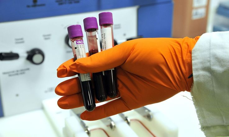 An annual blood test could reduce the numbers of deaths from ovarian cancer by about a fifth, according to new research. 14-year study hailed as landmark step in devising effective screening, but concludes more research needed before national programme is introduced.