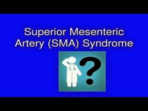 """Mystery Diagnosis - """"Superior Mesenteric Artery (SMA) Syndrome"""""""