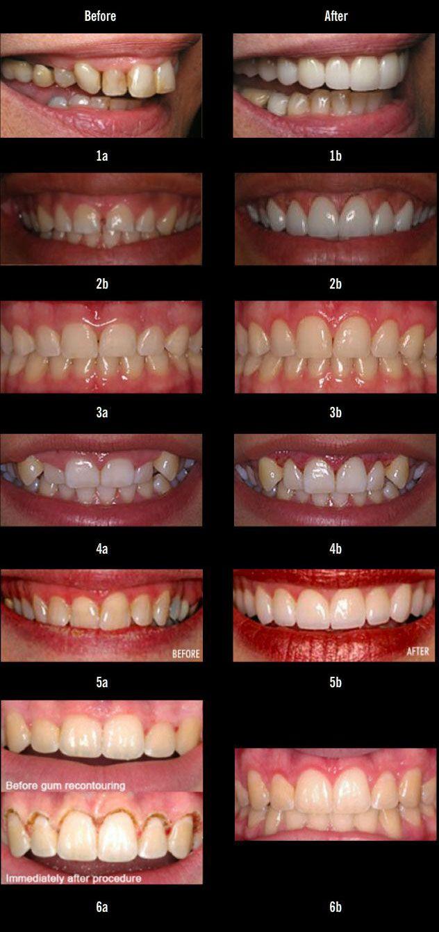 Laser Gum Recontouring procedure | Gum Lift & Reshaping
