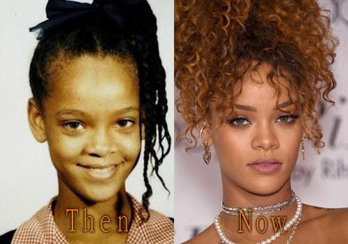 Rihanna Plastic Surgery Before and After. #rihanna #cosmeticsurgery #plasticsurgery #celebritysurgery #nosejob