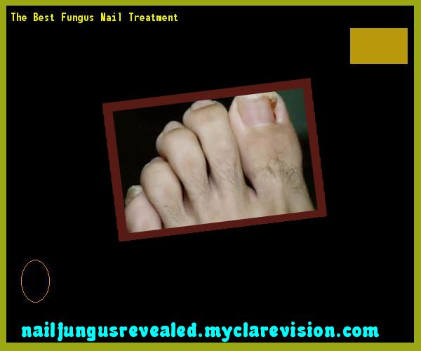 The best fungus nail treatment - Nail Fungus Remedy. You have nothing to lose! Visit Site Now