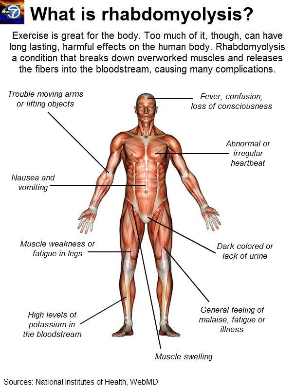 Rhabdomyolysis and Runners, Warning Signs & Symptoms