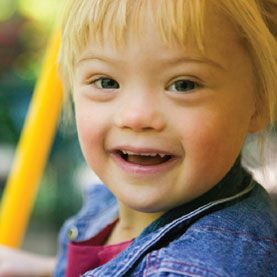 Recent breakthroughs (in research with animals) may lead to pharmacological treatments for Down Syndrome.