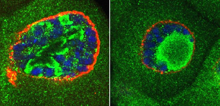 Cell Growth & Differentiation | i3S CAPTION: Viriato/Nol12 knockdown (right) affects cell growth and nuclear structure upon Myc oncoprotein overexpression. Green, nucleolus; Blue, DNA; Red, Nuclear membrane.