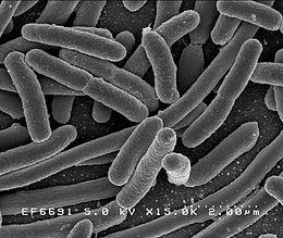 """Az Escherichia coli baktérium25000-szeres nagyításban """" A baktériumok (Bacteria) egysejtű, többnyire pár mikrométeres mikroorganizmusok. Változatos megjelenésűek: sejtjeik gömb, pálcika, csavart stb. alakúak lehetnek. A mikrobiológia egyik ága, a bakteriológia foglalkozik a baktériumok tudományos vizsgálatával."""" Idézet: Wikipédia"""