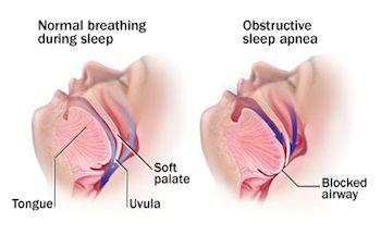 A picture showing airways of normal breathing and sleep apnea #Whatyoumustknowaboutsleepapnea