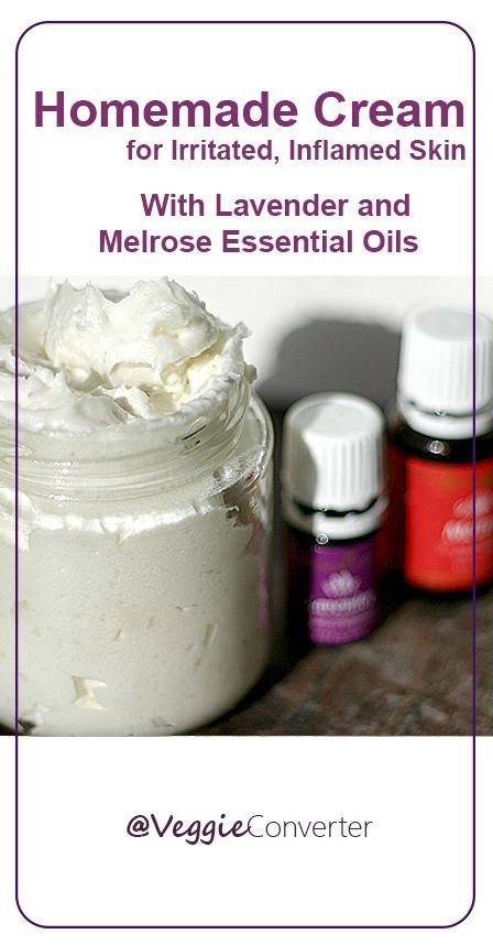 Homemade Cream for Irritated, Inflamed Skin | @VeggieConverter essential oils melrose lavender
