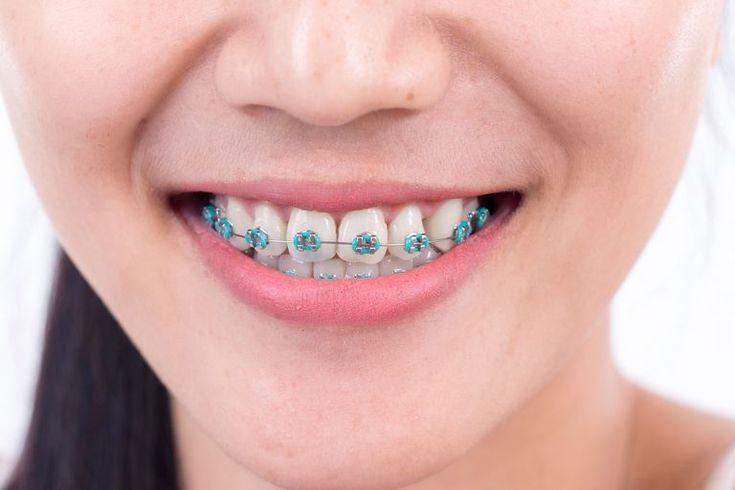 #braces #brackets #orthodontics #orthodontist #ortodoncia