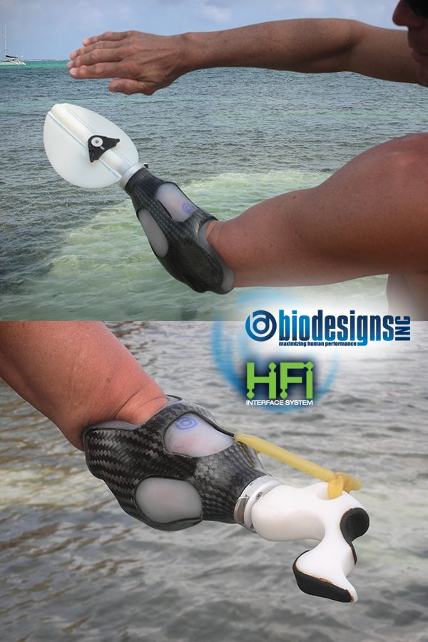 """""""My short sports prosthesis with its Hi-Fi socket technology, built by Randy Alley, biodesigns,  is the only prosthesis that I've ever been able to perform with in an immersed water environment, without utilizing the aid of a roll on locking liner. The Hi-Fi fit is truly unique, comfortably hugging the contours of my forearm while stabilizing the prosthesis against undue rotation and providing superior suspension.""""   Bob Radocy, CEO/President TRS Prosthetics"""