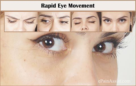 Rapid Eye Movement (REM) Sleep Behavior Disorder  Read: http://www.epainassist.com/sleep-disorders/rapid-eye-movement-or-sleep-behavior-disorder