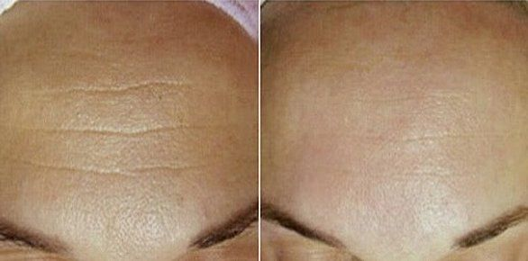 Puedes hacer tu propia crema facial contra las arrugas. Esta increíble receta es muy eficaz y no te arrepentirás si lo intentas.